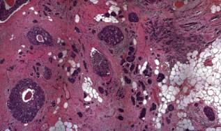 Breast-microscopy-466x276