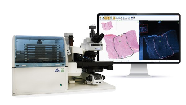 PathFusion™, Co-Developed by ARUP and ASI, Performing Digital Tissue Matching (PRNewsfoto/Applied Spectral Imaging (ASI))