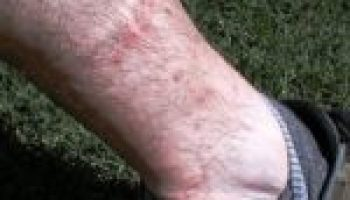 Chiggers, fleas more noticeable in summer