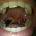 Tonsillectomy Picture