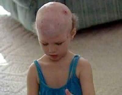 couro cabeludo partes do corpo re-implantadas em cirurgias
