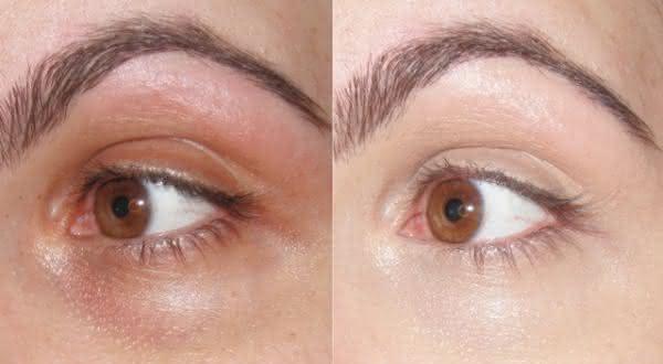 Top 10 dicas de como se livrar de olheiras