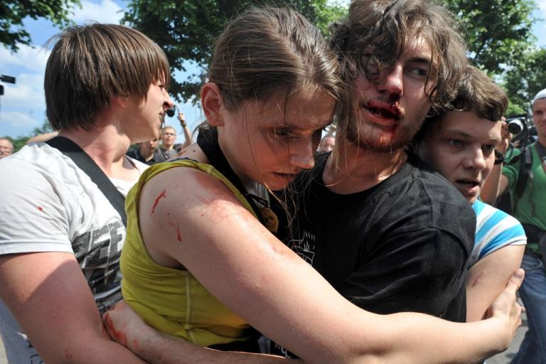 image sur les violences contre les lgbti en Russie