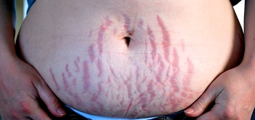 Top 6 Ways to Get Rid of Stretch Marks