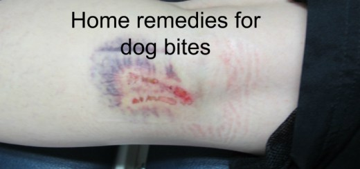 Home remedies for dog bites