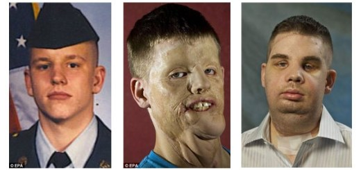10 unbelievable face transplants ever! This will melt your heart!