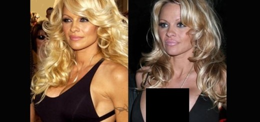 10 Surprising celebrities who had breast reduction surgery