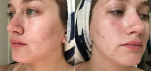 All it takes to get rid of acne is to keep your hands to yourself! A 7 day experiment that really made its point