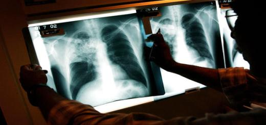 350 Babies may have been exposed to Tuberculosis by an employee at a California Hospital