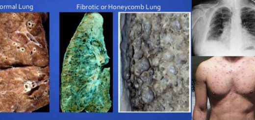 Learn about these Interesting and unknown facts about Honeycomb Lung