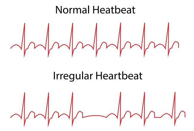 Chest pain and abnormal heart beat