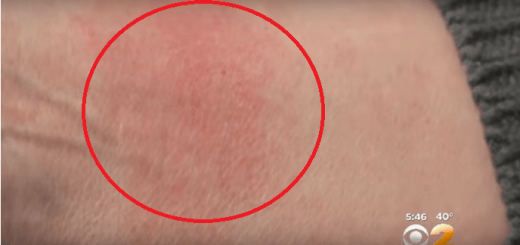 She was experiencing some allergic reaction. When she found the reason, she was shocked!