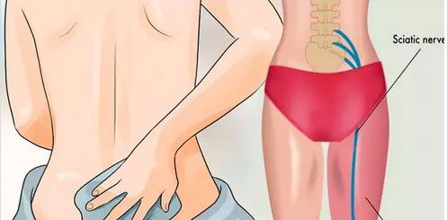 7 Natural ways to gain relief and reduce pain from Sciatica