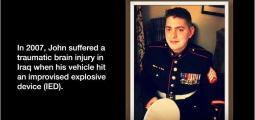 Marine receives double arm transplant after all his limbs were blown off in war