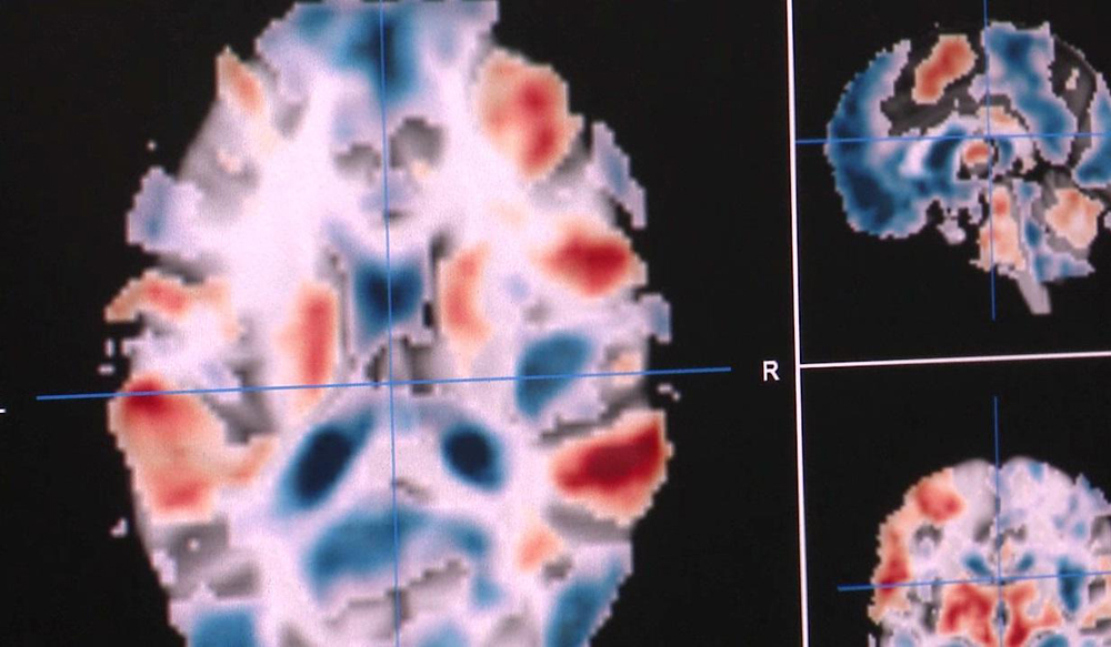 People Can Now Train Their Own Brains to Act Differently After Seeing It