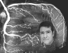 Jeffrey_Dach_Coronary_Artery_Angiogram_Stenting_CABG_HEart_Attack