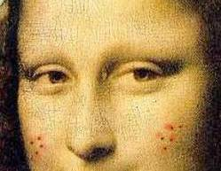 Mona_Lisa_acne_Pantothenic_Acid_B5_Acne