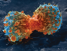 Lung_cancer_cell_during_cell_division-NIH