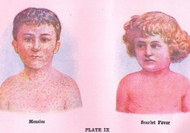 Measles-and-Scarlet-Fever-EUObserver