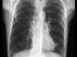 COPD-Radiopedia
