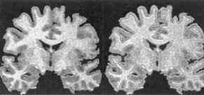 Lithium treatment increases gray matter volume in human brain