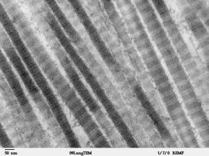 Fibers_of_Collagen_Type_I_-_TEM
