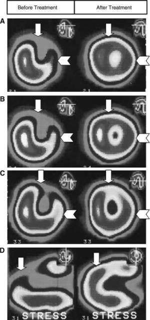Improved myocardial perfusion in stable angina pectoris by oral lumbrokinase Scan Image Kasim 2009