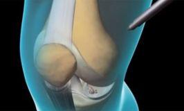 ¿Qué es una artroscopia?