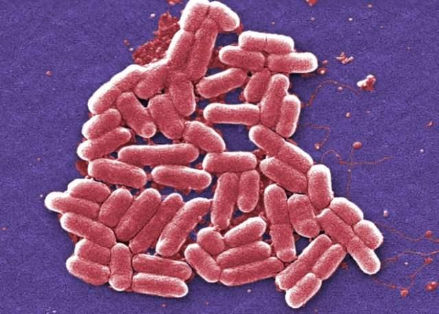 escherichia-coli-sem-cdc-janice-haney-carr