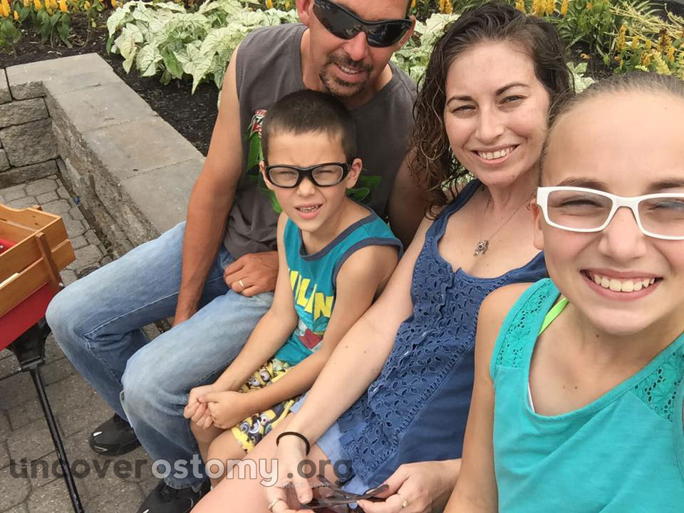 uncover-ostomy-susan-family