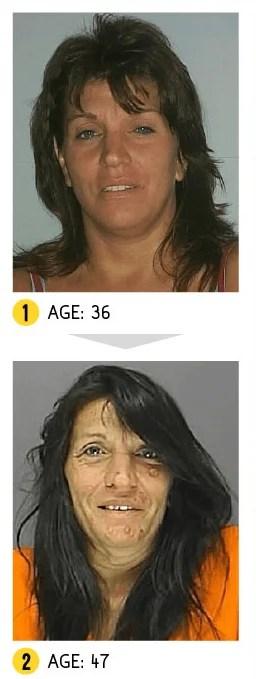 tossicodipendente donna
