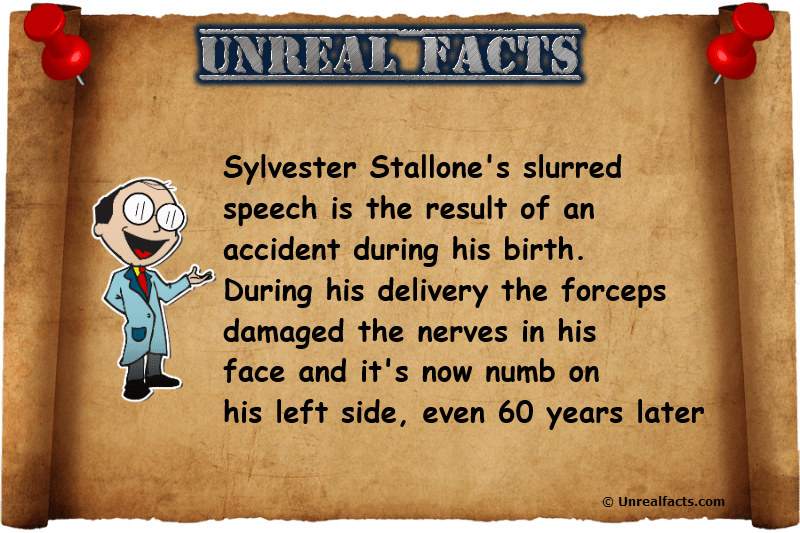Sylvester Stallone's Slurred Speech Impediment Was Caused ...