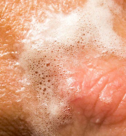 Medium Of Hydrogen Peroxide Ear Infection