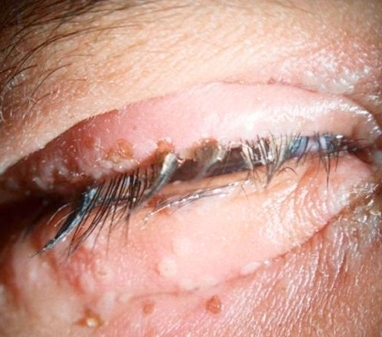 Can herpes cause loss of eyesight? 3