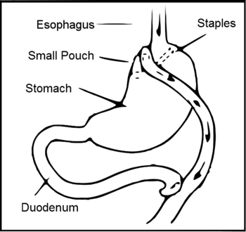 Diagram of a Roux-en-Y gastric bypass.