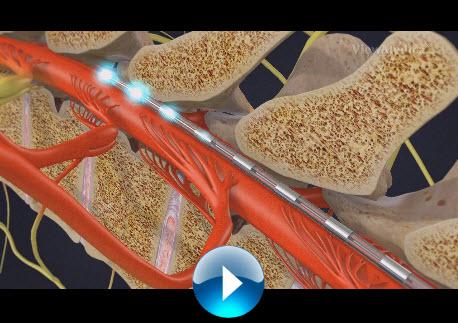 spinal-cord-stimulator-implant