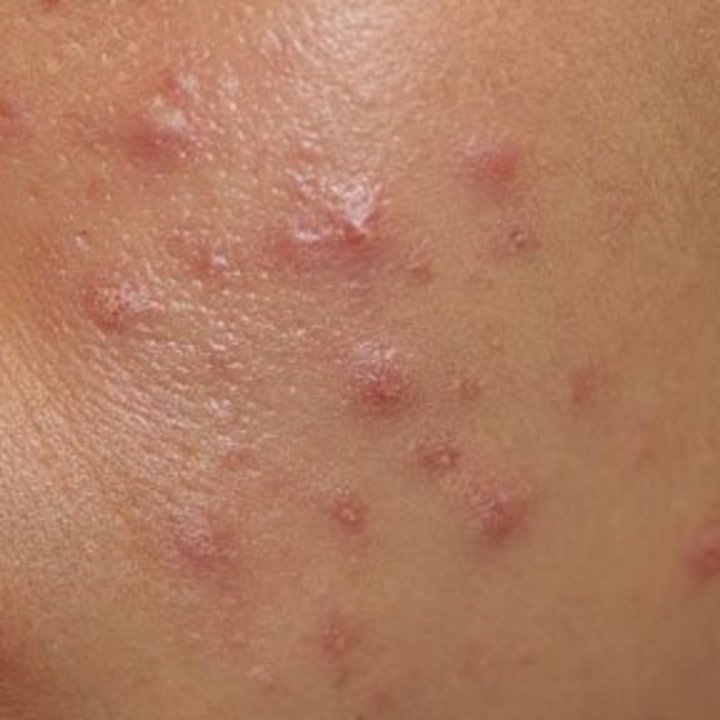 Can Herpes Be Mistaken For Acne? 1