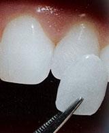 Dental Veneers Vancouver