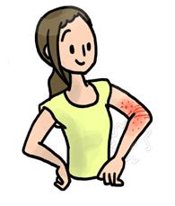 体のかゆみアレルギー体質によく効く漢方薬「澄肌漢方堂」