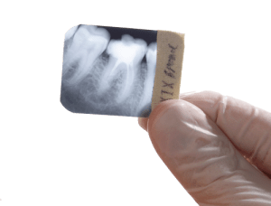 Periapical X-Ray Film Inspection