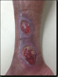 下肢静脈瘤・うっ滞性潰瘍