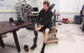 bionic_leg_shark_attack