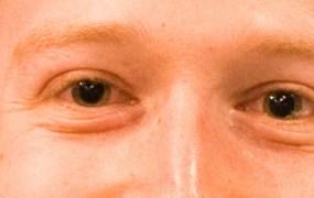 Mark Zuckerberg is watching you.