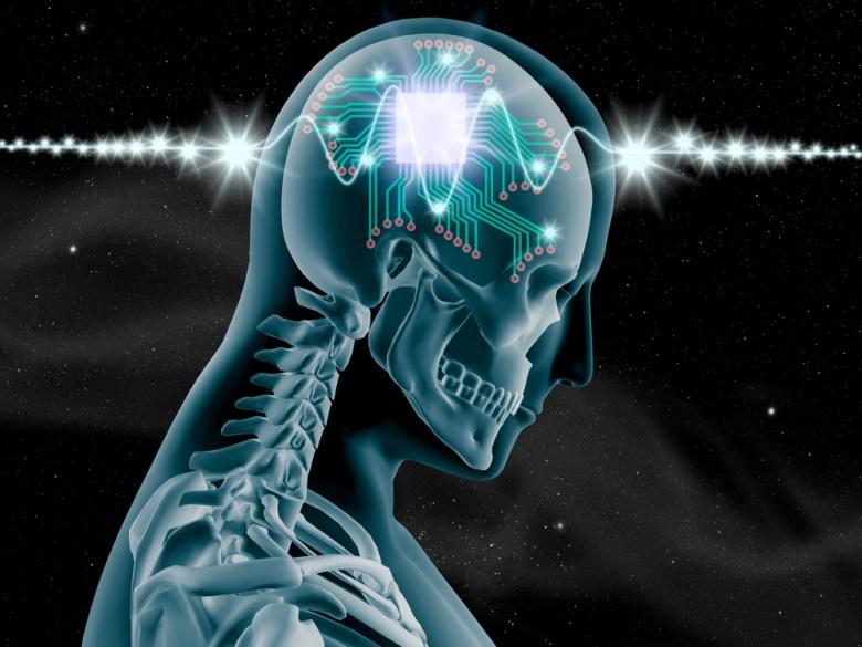 Human brain chip Nixx Photography Shutterstock