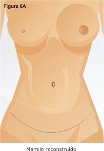 areola shapes and sizes