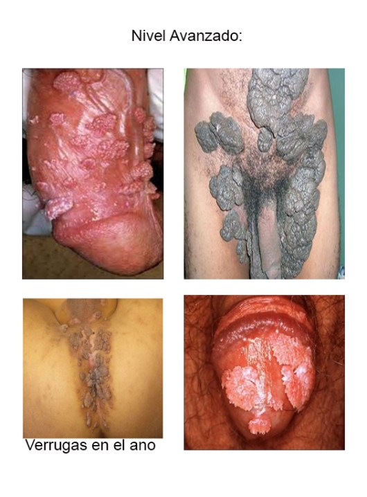 Verrugas Genitales En Hombres
