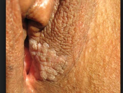 Solución Rápida Para Eliminar El Virus Del Papiloma Humano