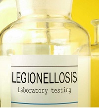 legionella sample