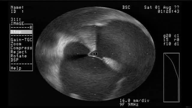Appearance of Radial ICE to Guide Transseptal Punctures