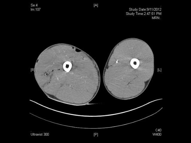 Femoral Angiogram